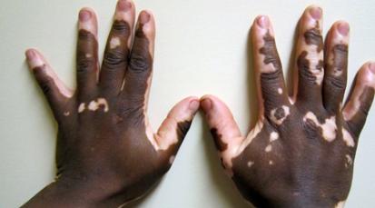 El vitiligo