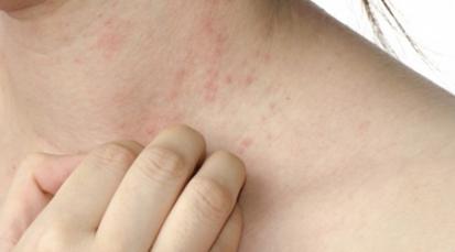 Escabiosis ¿Cómo se trata esta enfermedad?